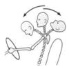 頸部捻挫(むちうち)へのアプローチ