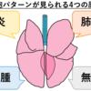 【肺水腫】②~症状・診断方法・治療法~