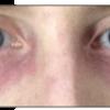 症例:CMAJ 32歳男性 眼瞼周囲の発赤