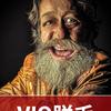 【毛7】VIO脱毛(メンズ)1回目と数日経過観察