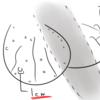 【メディカル】金玉に謎のブツブツ?睾丸皮下腫瘍を切除した話