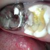 臨時休診のお知らせ・テナント歯科の悲哀