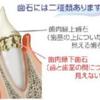 犬猫の歯周病治療は、 みえている歯石を取るだけではダメな理由を知っててほしい!!