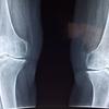 半月板損傷だったことが判明、膝の痛みを軽減する対策を聞いた。