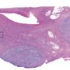 川崎病で腫脹したリンパ節の中では何が起きているのか?