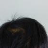 頭皮に良くない生活の中でナノインパクトを実際に使ってみた!