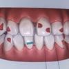 海外留学しながら歯列矯正はできる?!マウスピース矯正経過報告(8か月経過)