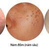 Nguyên nhân và cách điều trị nám da hiệu quả