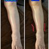 足のむくみ、リンパ浮腫