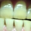 歯が白くなる歯磨きを使ってみる アパガード プレミオ プレミアムタイプ  4日目