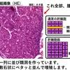 犬猫の肝胆道系腫瘍①~概要と挙動~