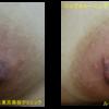 「ニップルトーニング」で乳首の色を明るくしました。