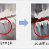 インビザライン矯正で動いた歯のレントゲン写真比較