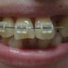 歯列矯正を開始してから198日目。