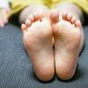 水虫の治し方!指の間, 爪は?症状別かかる期間や治療法とは!