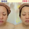 【モニター感想あり】2週間後の感想!炎症肌改善の兆し!!