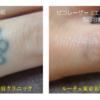 小指のタトゥーがほとんど消えました