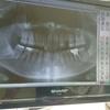 【フツウのコト12】歯科、抜歯。