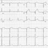 症例18:左胸痛と息切れを訴える40歳男性(Ann Emerg Med. 2020 Nov;76(5):590-592.)