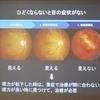 糖尿病教室「糖尿病と眼のおはなし/歯が痛くなくても歯医者に行こう」