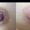 ピコニップルケアで他院治療の修正をしました。