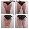 太腿・臀部の脂肪吸引🕺🏻