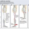 Rotationplasty(ローテーションプラスティ)と術後の機能