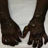 """症例15:""""Henna Tattoo""""で水疱ができた12歳女性(J Emerg Med. 2020 Oct;59(4):e137-e138.)"""