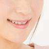 【閲覧注意】金属アレルギーだと歯は銀の被せ物で大丈夫?保険で白い歯にできる!?