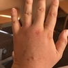 入院5週2日【32w3d】低温火傷?!