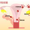 【卵子提供】BT7ー症状とフライング②、子宮外妊娠の確率