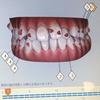 海外留学しながら歯列矯正はできる?!マウスピース矯正経過報告(4か月経過)