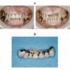 112回歯科医師国家試験から3週間たったから改めて振り返る企画【歯冠補綴学編】④