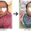 わが子にあらわれた新生児黄疸!!母乳育児の影響??はじめとても色黒だったむすめの話