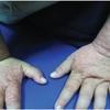 症例79:発熱と増悪する皮疹を呈する3歳女児(BMJ. 2020 Dec 2;371:m4349.)