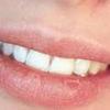 Penyebab Bibir Kering Dan Cara Mengatasinya