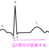 QT延長の定義とその原因