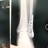 左足首を骨折してから歩けるまでの日記 No.3
