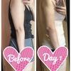 二の腕の脂肪吸引【術後1日目】比較写真あり
