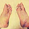 足裏にできた血マメをどうするか問題