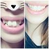 歯並び比較!