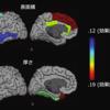 【ADHDの脳画像研究】成長とともに脳発達の差はなくなっていく?