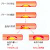 動脈血栓症と静脈血栓症の違い
