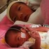 【双子爆誕‼】36週1日にて帝王切開にて一卵性双生児が無事産まれました!【エコーとの差は?】