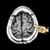 中心溝の臨床利用 言語聴覚士さん必見