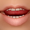 【Skyrim】口パク不具合を起こさずにRealistic Teethを使う実験