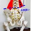 「骨盤の位置のズレ」