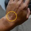 腕時計のねじ(リューズ)は痛いものだと思い込んでた…痛みから解放される方法・商品まとめ