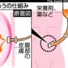胃瘻と中心静脈栄養の違いと適応