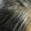 老けて見られるのは嫌!生え際からくる薄毛と側頭部の白髪の対策とは?
